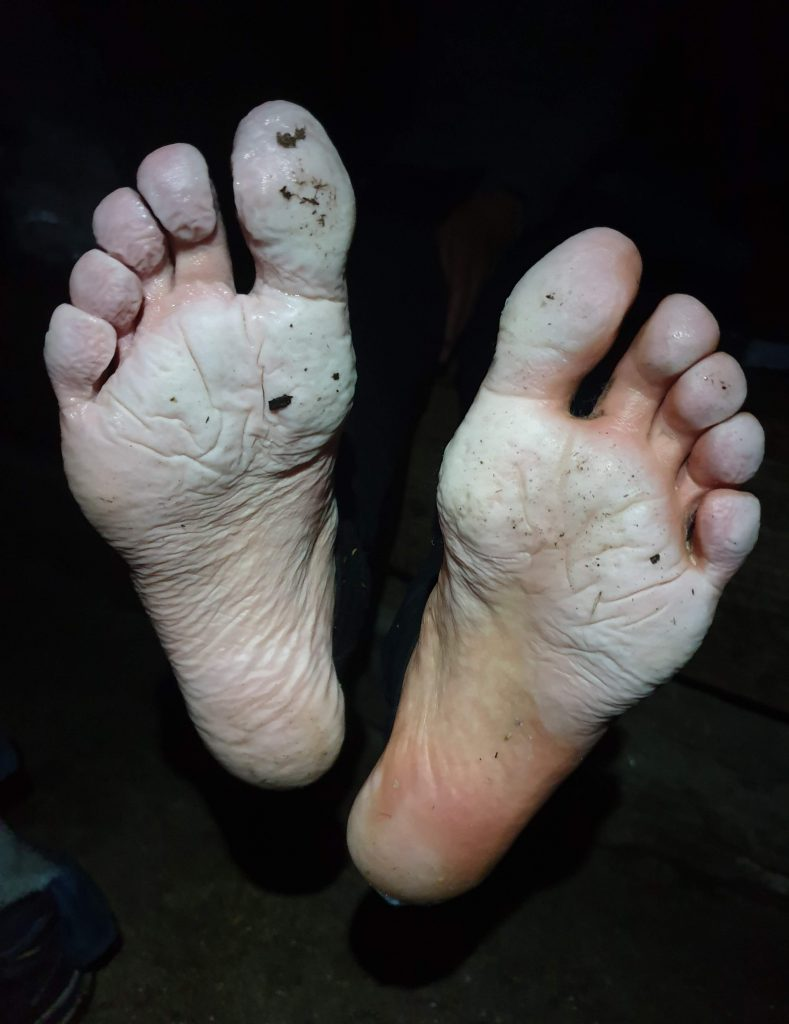 Adventurer Nic's zombie feet after hiking the most westerly Knoydart Munros over wet terrain for 17 hours and 40 minutes